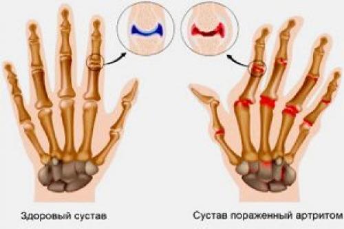Лечение суставов рук в домашних условиях. Лечение артрита пальцев рук дома — обзор эффективных методик