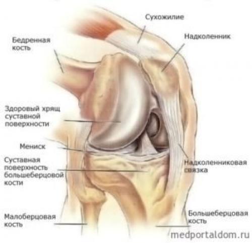 Восстанавливается ли хрящевая ткань в коленном суставе. Характер возникающей проблемы