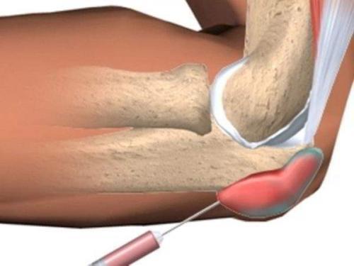 Сухожилия в локтевом суставе. Этиопатогенез тендинита локтевого сустава