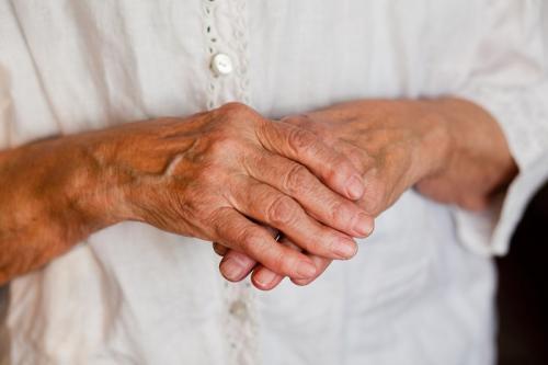 Как лечить артроз кисти рук. Артроз суставов кисти руки лечение