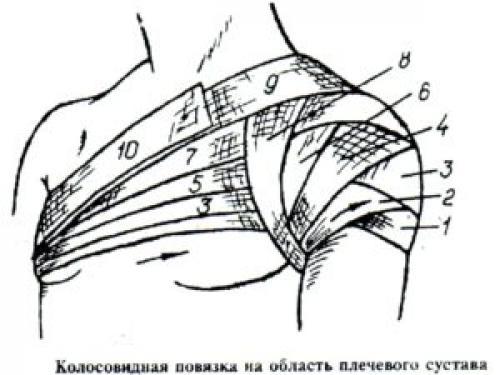 Перевязка плеча бинтом. Какая перевязка при переломе плеча более эффективна