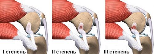 Сколько проходят связки колена. Характер разрыва истепени