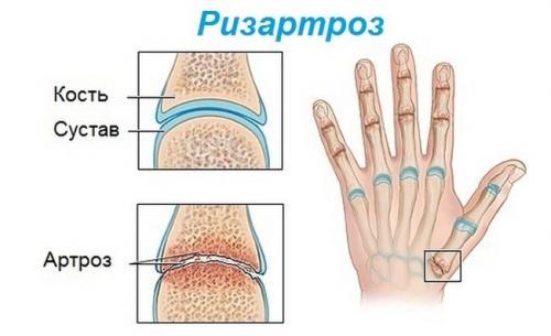 Шишки на фалангах пальцев рук. Симптомы