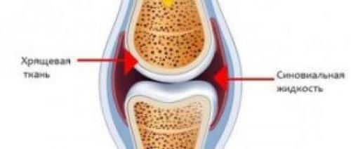 Восстановление синовиальной жидкости народными средствами. Что влияет на количество синовии в суставе