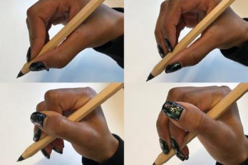 Как избавиться от шишки на среднем пальце. Профилактика