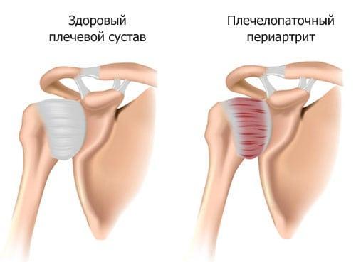 Щелкает и болит плечевой сустав. Плечелопаточный периартрит