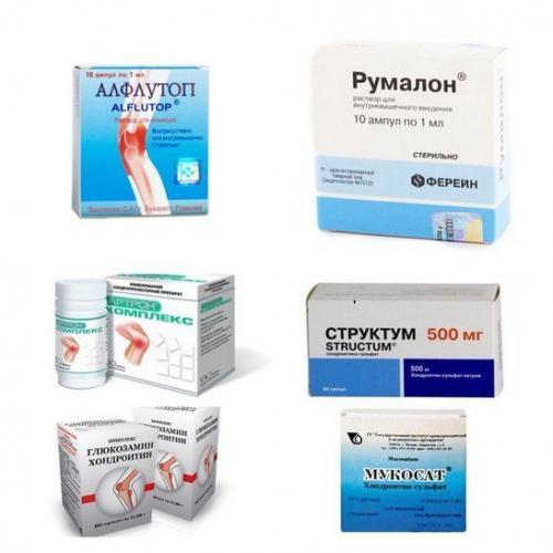 Препараты восстанавливающие хрящевую ткань в суставах. Хондропротекторы