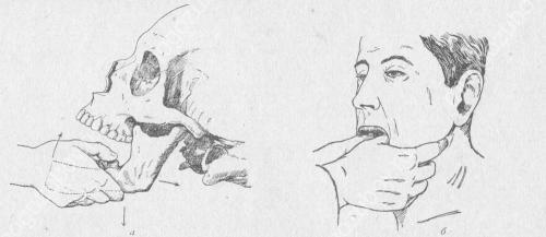 Подвывих нижней челюсти симптомы. Как лечат травму ВНЧС