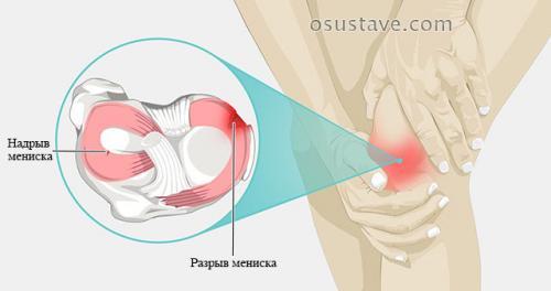 Повреждение мениска 2 степени нужна ли операция. Виды повреждений мениска коленного сустава: их обзор, степени, симптомы и лечение