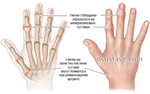 На суставе мизинца нарост. Шишки на суставах пальцев рук: причины, диагностика и лечение