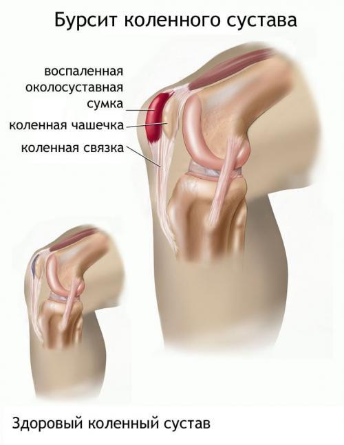 Можно ли греть коленный сустав при бурсите. Лечение бурсита коленного сустава в домашних условиях