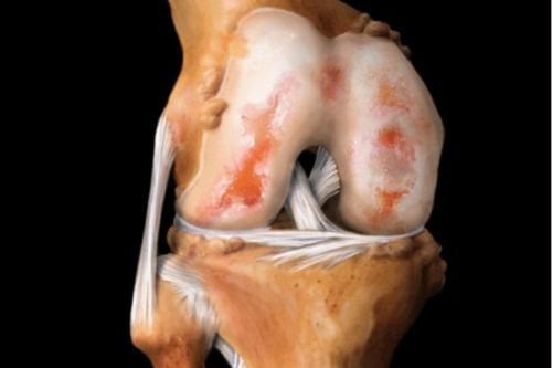 Препараты для наращивания хрящевой ткани суставов. Препараты для восстановления хрящевой ткани суставов: мифы и реальность