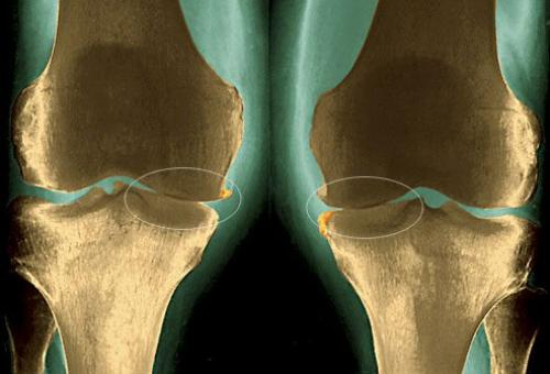 Чистка суставов от солей народными средствами. Лечение заболевания