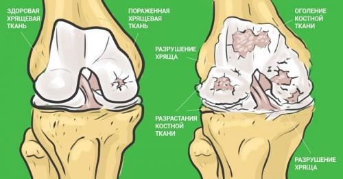 Как пить желатин с аскорбинкой. Восстановление суставов с помощью желатина
