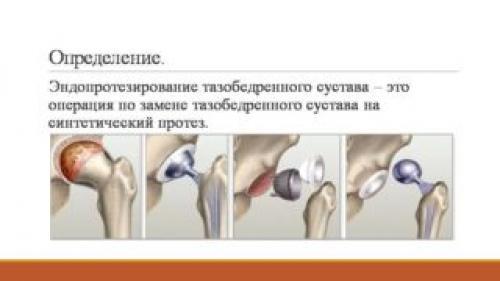 Тренажеры после эндопротезирования тазобедренного сустава. Польза ЛФК после эндопротезирования тазобедренного сустава