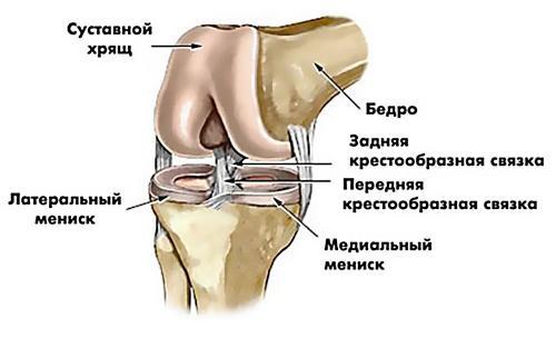 Что такое разрыв мениска коленного. Виды и симптомы повреждения