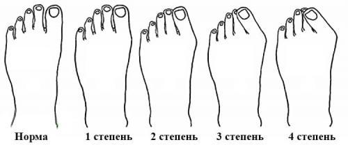 Красный палец на палец. Симптомы
