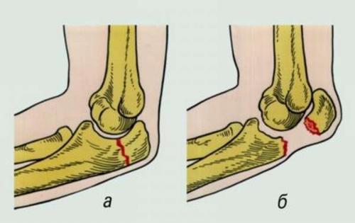 Перелом локтевого сустава. Виды переломов локтевой кости