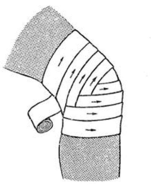 Повязка на коленный сустав черепашья. Черепашья повязка