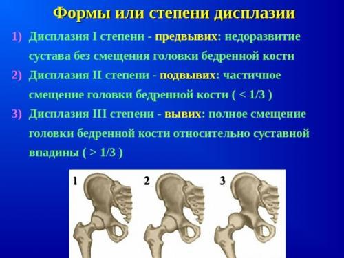 Ацетабулярные углы норма таблица. Углы тазобедренных суставов у детей: виды, зависимость нормы от возраста, определение на УЗИ и рентгенограмме