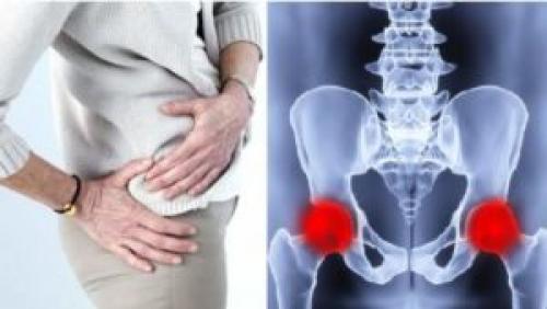 Характеристика тазобедренный сустав. Тазобедренный сустав Фото рентгена здорового и больного человека с описанием. Строение и патологии +Видео