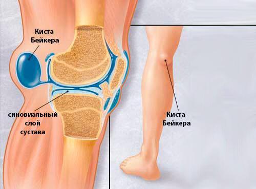 Горячая коленка и болит, что делать. Воспаления