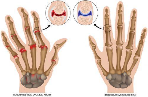 Шишки на пальцах рук причины и лечение народными средствами. Причины артритных шишек