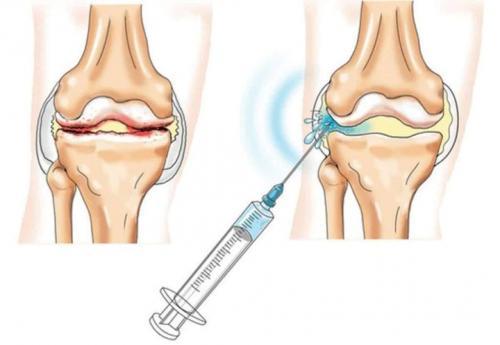 Уколы от артроза коленного сустава название. Уколы при артрозе коленного сустава