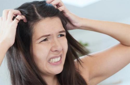 Маска для волос в домашних условиях против перхоти. Домашние рецепты масок против перхоти