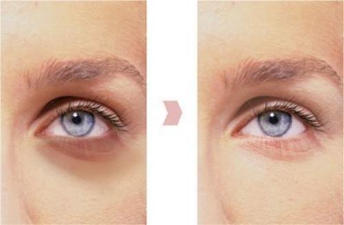 Синяки под глазами, как избавиться. Народное лечение