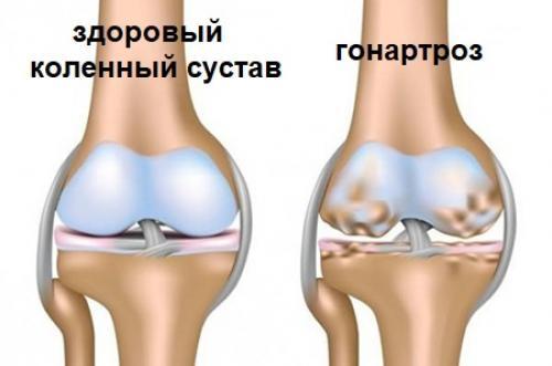 Укол гиалуроновой кислоты в сустав коленный сустав. Гиалуроновая кислота для суставов
