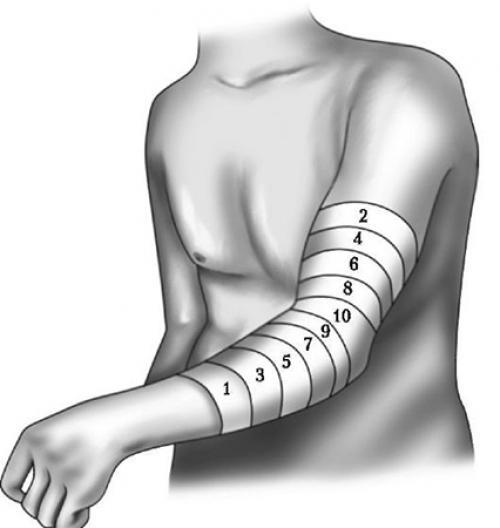 Черепашья повязка сходящаяся на коленный сустав. Черепашья повязка на коленный сустав