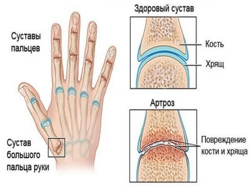 Лечение остеоартроз кистей рук народными средствами. Причины и симптомы артроза кистей