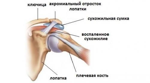 Почему болят мышцы рук от плеча до локтя. Заболевания суставов и околосуставных тканей