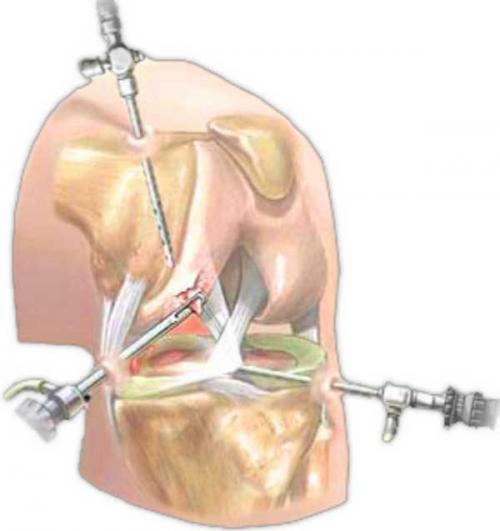 Разрыв заднего рога медиального мениска лечение. Повреждение заднего рога медиального мениска – лечение
