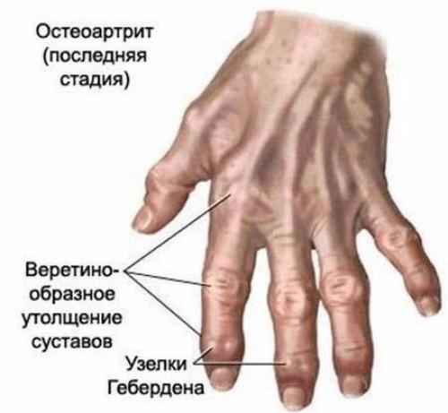 На пальце руки на сгибе шишка. Шишки на фалангах пальцев рук