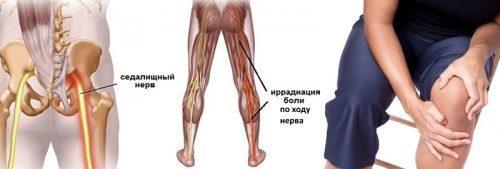 Где проходит нерв в колене. Защемление нерва в коленном суставе симптомы