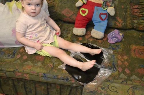 Парафин на спину ребенку. Область и правила применения парафино- и озокеритотерапии в детской практике