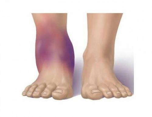 Синовит голеностопного сустава — лечение, симптомы и диагностика
