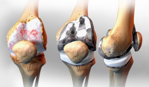 Операция лечение суставов. Виды хирургического лечения артрита