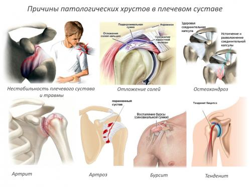 Плечо болит и хрустит лечение. От чего появляется хруст в плече