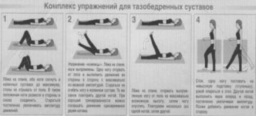 Что нельзя делать при коксартрозе тазобедренного сустава. Лечебная гимнастика и занятия спортом