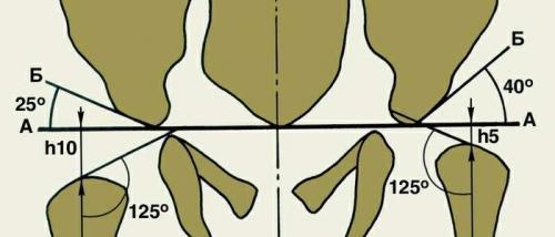 Углы тазобедренных суставов норма таблица. Угол тазобедренного сустава у новорожденного
