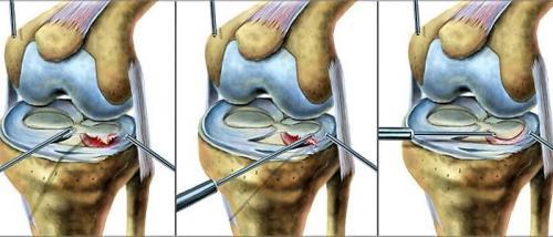 Повреждение мениска 3б степени. Степени повреждения мениска