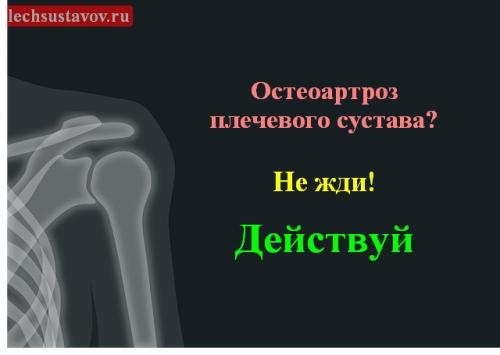 Остеоартроз плечевого сустава 2 степени. Остеоартроз плечевого сустава — лечение, симптомы, терапия, причины