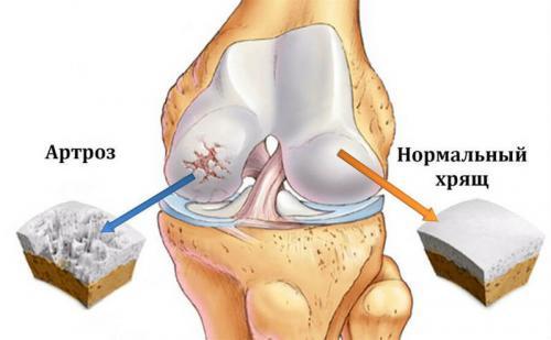 Желатин для суставов форум. Чем полезен желатин для суставов и для костей?