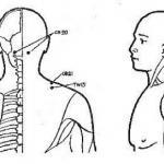 Восточный массаж при болях в плечевом суставе.